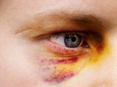 Ответственность за нанесение телесных повреждений – статья по УК РФ, состав преступления