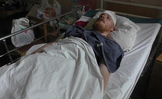 Тяжкие телесные повреждения: уголовная ответственность за нанесение вреда здоровью