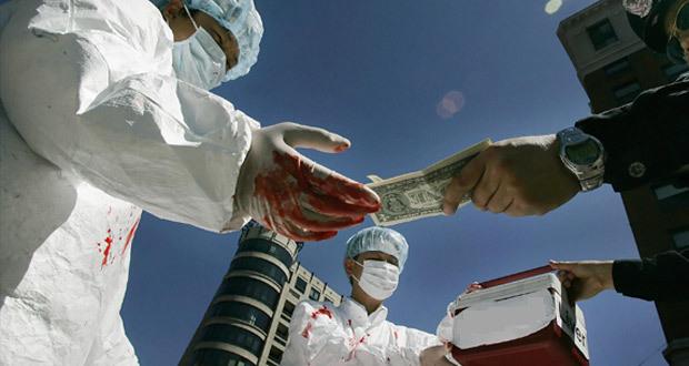 Незаконная трансплантация органов человека, ответственность по УК РФ, состав преступления